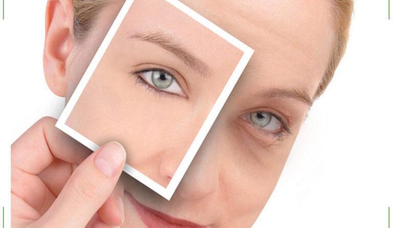 Как снять отечность с глаз быстро в домашних условиях