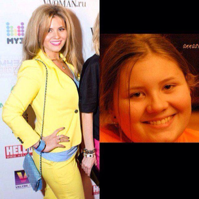 Как похудела Анна Шульгина?