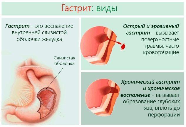 Диета при гастрите с повышенной кислотностью в период обострения