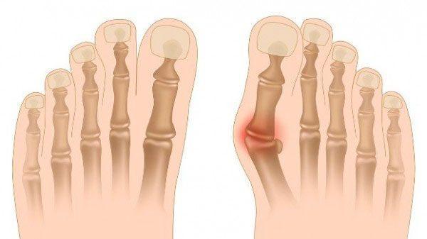 Питание при подагре ног: что можно, что нельзя?